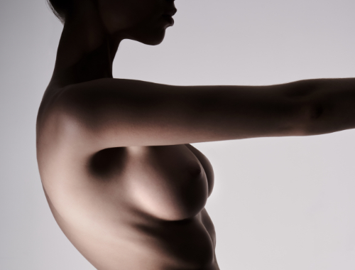 Breast Augmentation with Implant