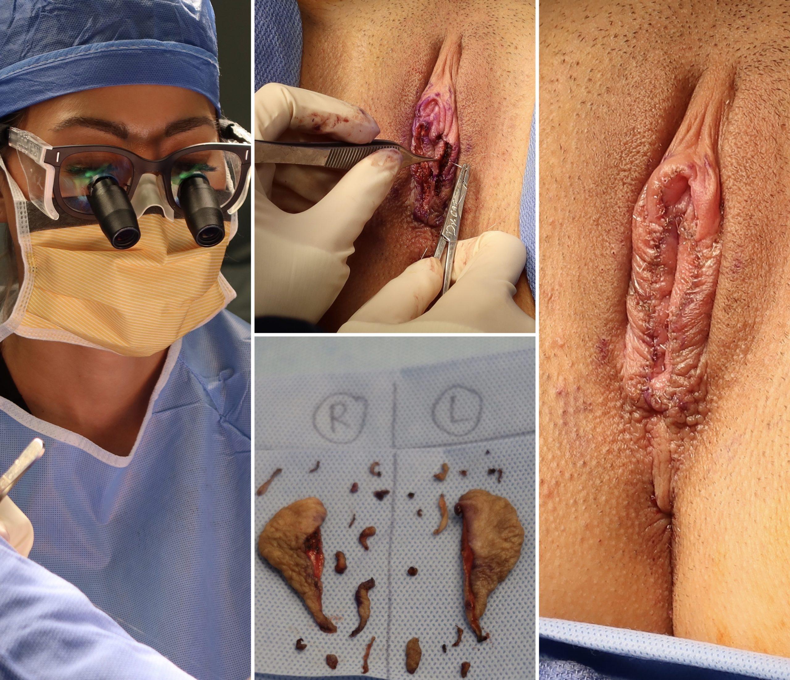 Life Changing Labiaplasty