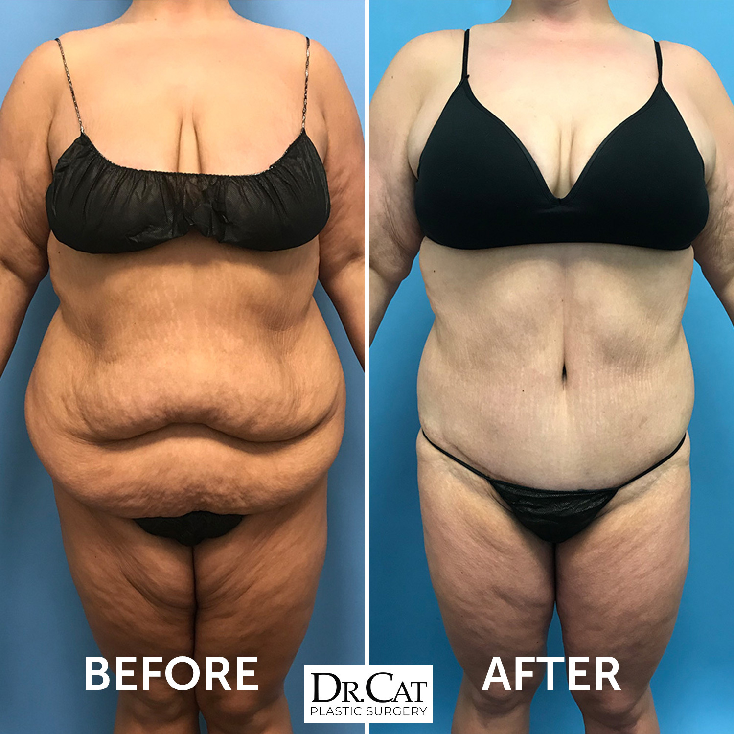 extened tummy tuck before and after photo