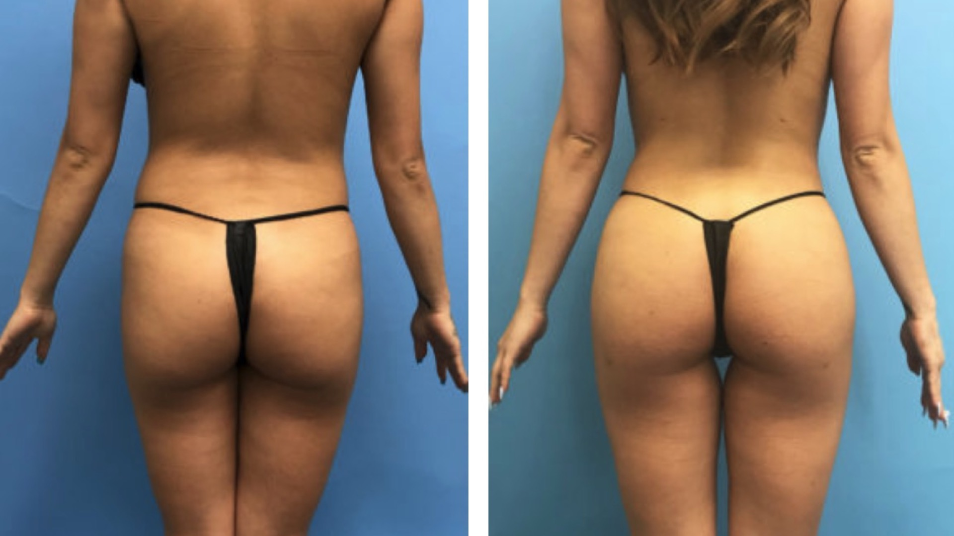 brazilian butt lift image before and after
