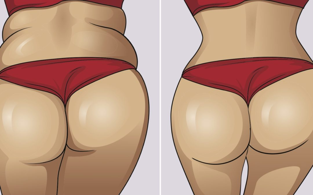 brazilian-butt-lift-things-to-know-before-surgery-banner
