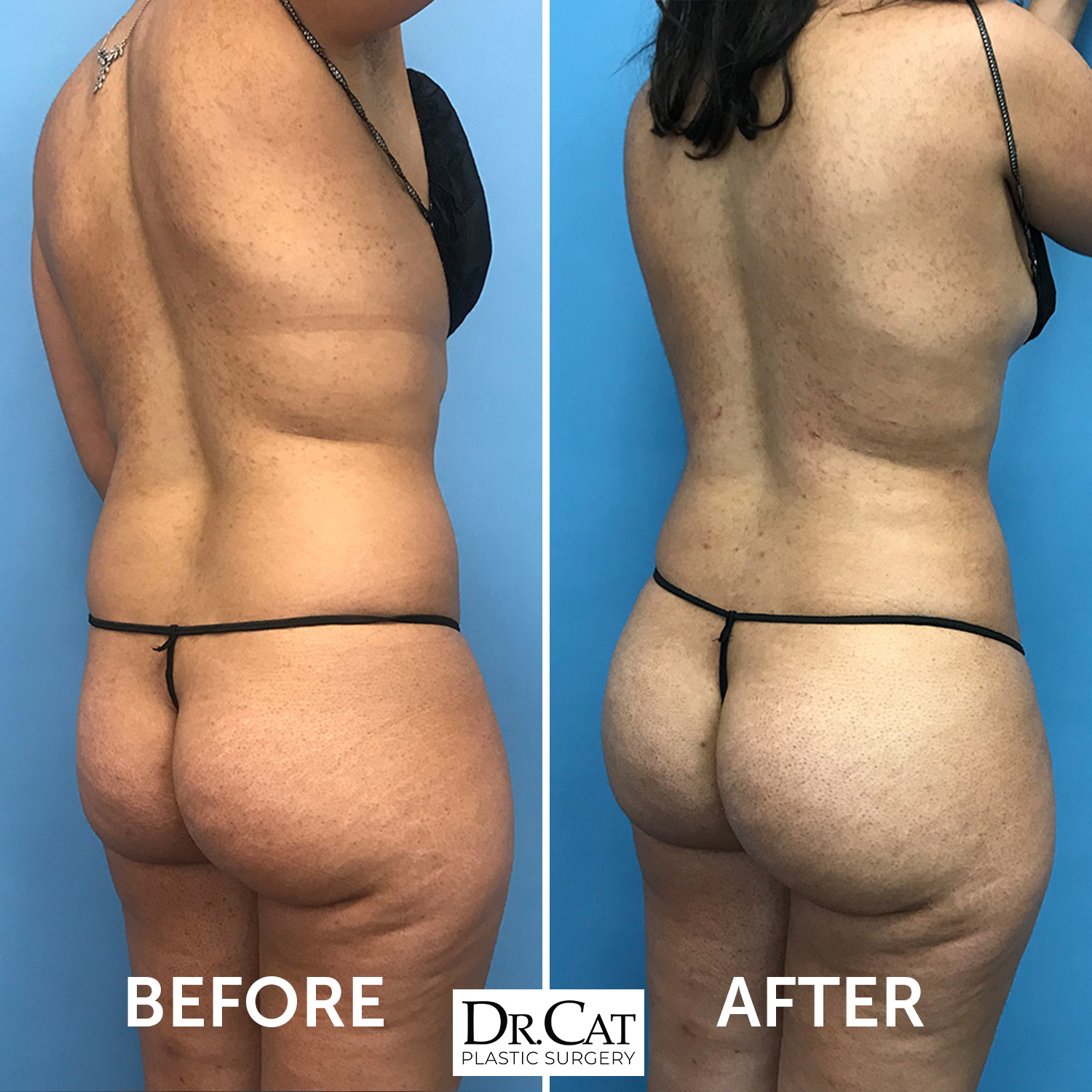 Brazilian Butt Lift Before and After Image