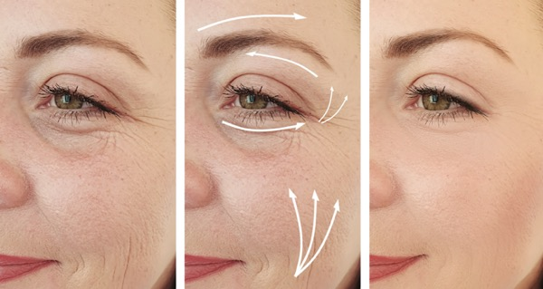Thermi device for wrinkles