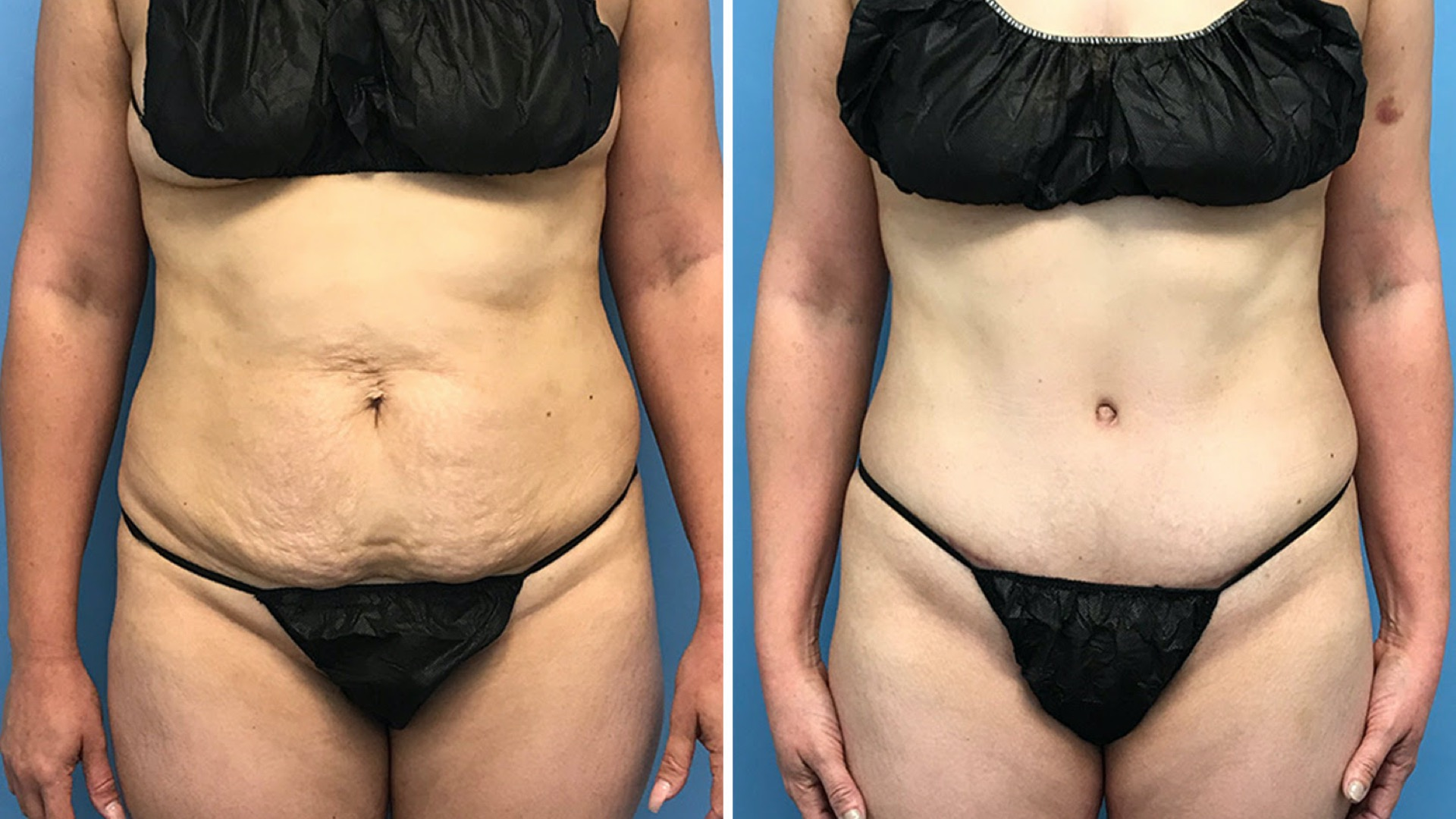 tummy tuck: everything you want to know